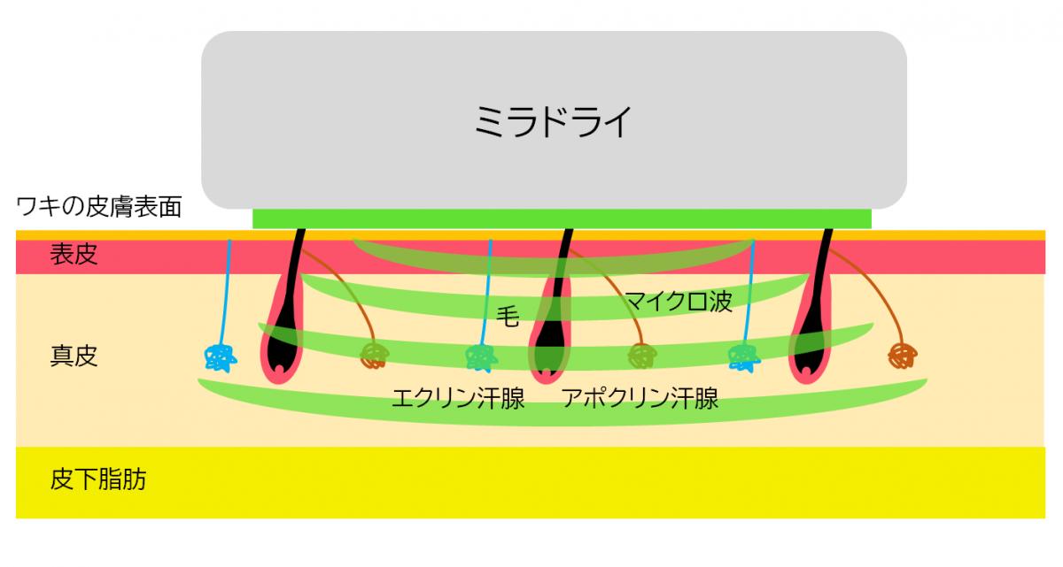ミラドライ照射のイメージ図