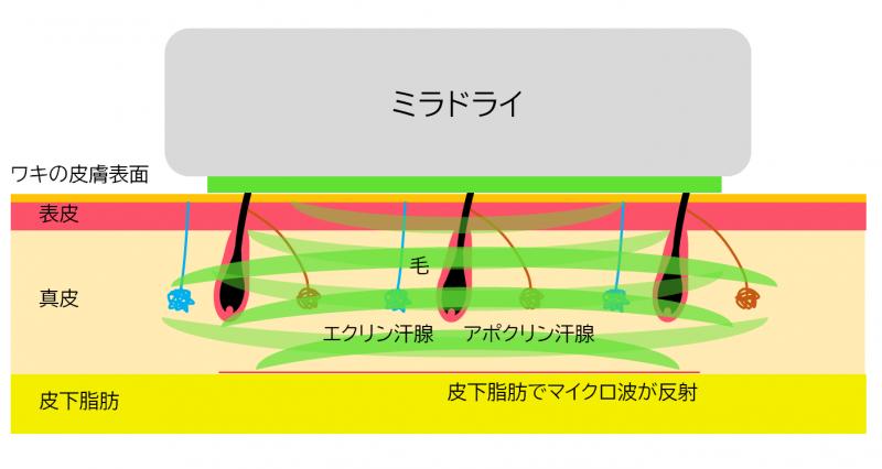 ミラドライ照射時のマイクロ波反射のイメージ図