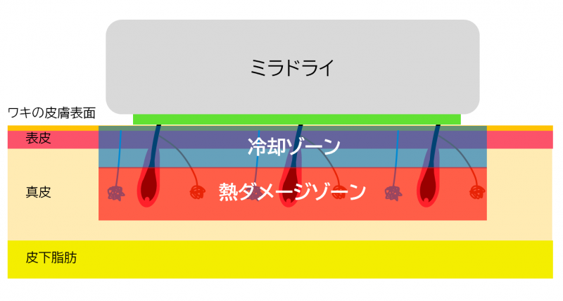 ミラドライの冷却ゾーンと熱ダメージゾーンのイメージ図