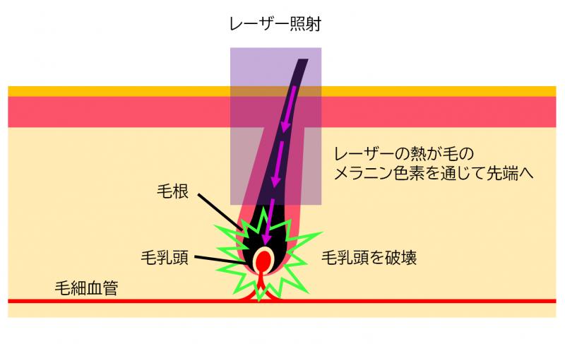 レーザー脱毛のメカニズムの解説図