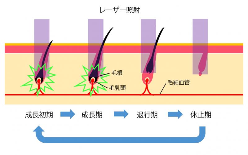 髭へのレーザー照射の解説図